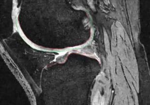Knee Bone Segmentation